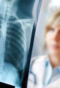 xray of ribcage